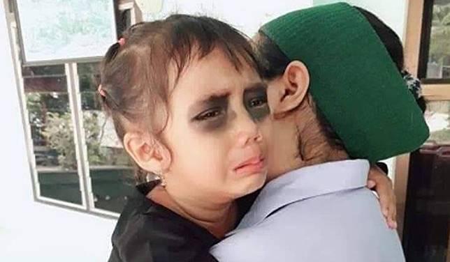 Unggahan viral mata anak dihitamkan ibunya karena terlalu sering main gawai. Twitter.com
