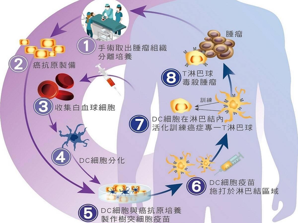 自體免疫細胞治療開啟癌症治療新希望  中廣新聞網  LINE TODAY
