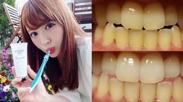 黃板牙笑的好失禮?瘋迷日本 3 款「美齒香香神器」讓你重拾潔白牙齒!