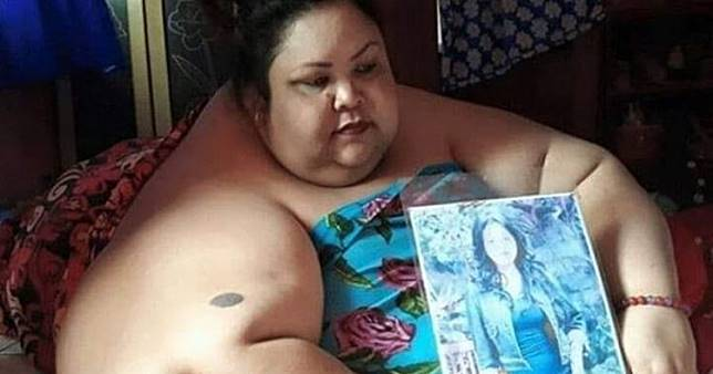 4 Fakta penyebab obesitas Titi Wati, wanita berbobot 350 kg
