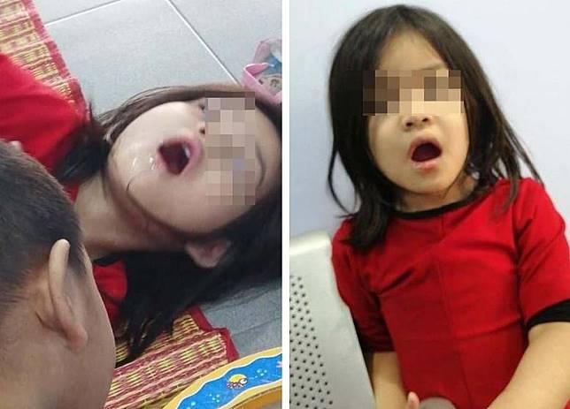 Anak Husnulkhotimah Fahmi, Nashwa nggak bisa menutup mulut karena bibirnya mengalami kejang usai menggigit Daun Bahagia