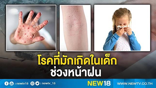 โรคที่มักเกิดในเด็กช่วงหน้าฝน