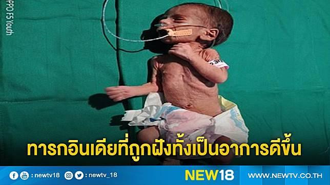 ทารกอินเดียที่ถูกฝังทั้งเป็นอาการดีขึ้น