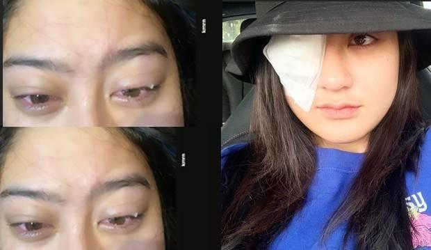Berikut cumicumi.com merangkum cerita menyeramkan Salshabila yang mengalami gangguan penglihatan parah karena penggunaan softlens yang tak sesuai aturan.