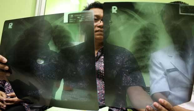 Tim Dokter menunjukan hasil foto Rontgen pasien  suspect virus Middle East Respiratory Syndrome Coronavirus (MERS-CoV)  yang di rawat di ruang Isolasi Rumah Sakit Bhayangkara, Kediri, Jawa Timur, Jumat (9/5). ANTARA/Rudi Mulya