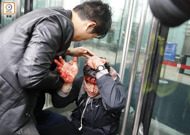 有便衣警員被示威者襲擊,血流披面。(李志湧攝)