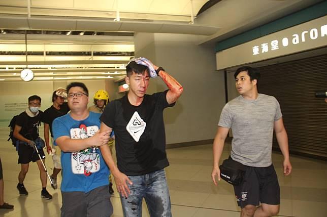 柳俊江頭部受傷流血。
