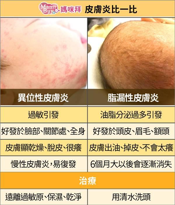 性 炎 漏 脂 皮膚