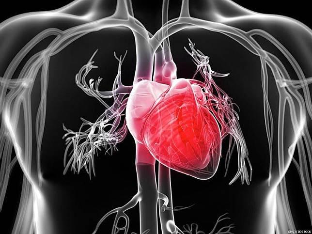 """""""โรคหัวใจ"""" กับความเข้าใจผิดๆ!"""