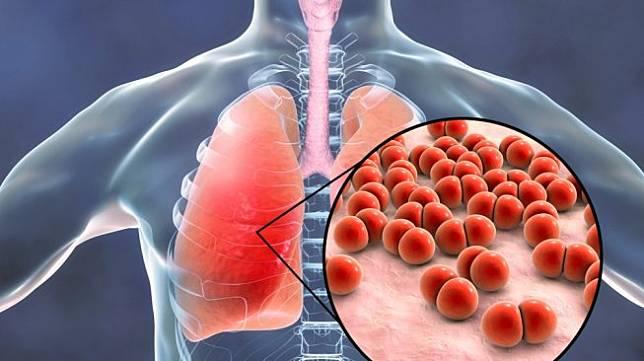 Muncul Kasus Pneumonia Misterius yang Lebih Mematikan dari Covid-19