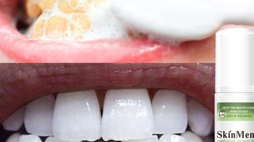 黃板牙的救星!8款超強去牙漬美白牙膏評比,就是要還你完美笑容