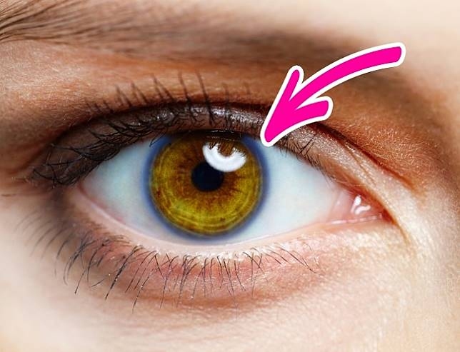 Image result for cincin disekitar iris mata