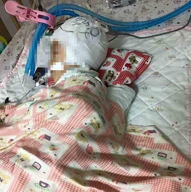 翁姓女嬰遭惡保母「倒吊式」重摔在地,導致腦部重創,最終仍是不幸身亡。
