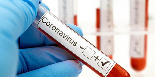 ilustrasi virus corona covid-19/photo copyright by Shutterstock