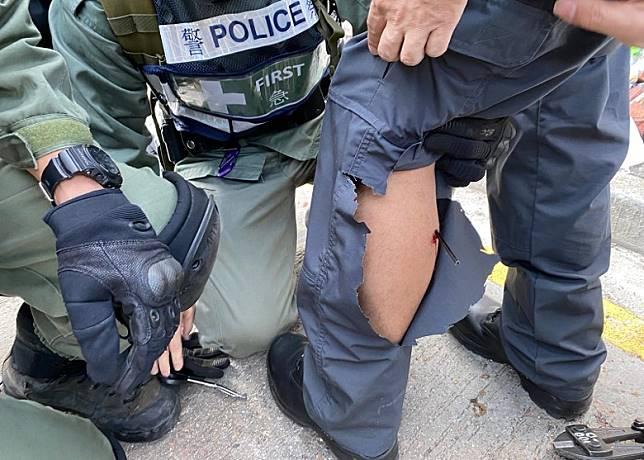 防暴警查看受傷同袍傷勢。