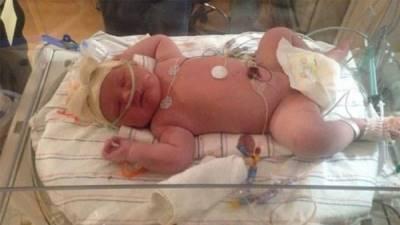 Lạ nhất lịch sử sinh đẻ: Bé gái sơ sinh gần 7 kg, dài người gần bằng trẻ 6 tháng tuổi