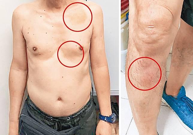事主上身兩處瘀青(左圖),右腳小腿亦有瘀傷(右圖)。