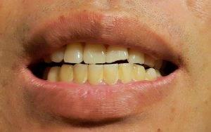 牙漬如何形成?這些原因易讓牙齒染色