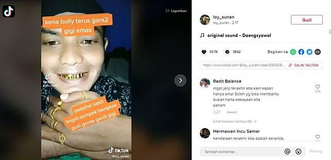 Viral Pria Dibully Usai Ganti Gigi Emas. (TikTok/@loy_sunan)