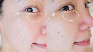 編輯素顏實測|Vine-Vera微風南山|夏天控油清粉刺最快秘方的黑眼圈淡化眼周暗沉,輕鬆清閉鎖型粉刺方法分享!白藜蘆醇維生素C系列