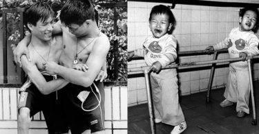 手足之情/連體嬰分割40周年哥哥卻走了,弟弟:延續他的份加倍生活