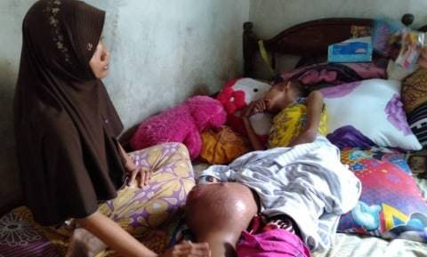 Derita Silfi, Siswi SMP di Mojokerto Penderita Kanker Tulang
