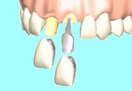 接着 歯科 剤 用