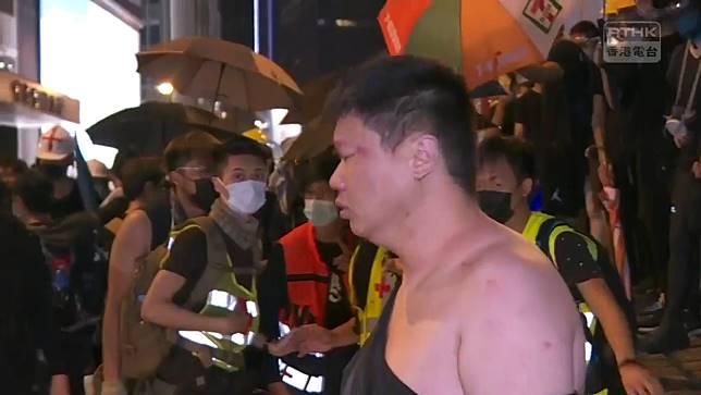 客貨車司機被示威者打傷。香港電台截圖