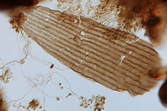 Salah satu sisik kupu-kupu purba di bawah mikroskop
