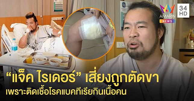 """ช็อค! """"แจ็ค ไรเดอร์"""" เสี่ยงถูกตัดขา หลังถูกแมลงที่ญี่ปุ่นกัด จนติดเชื้อโรคแบคทีเรียกินเนื้อคน"""