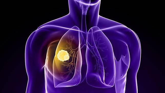 pasien kanker paru adalah operasi, kemoterapi, radiasi, dan terapi target.