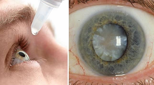 นักวิทยาศาสตร์อเมริกา ค้นพบยาหยอดตาสลายต้อกระจกแล้ว!