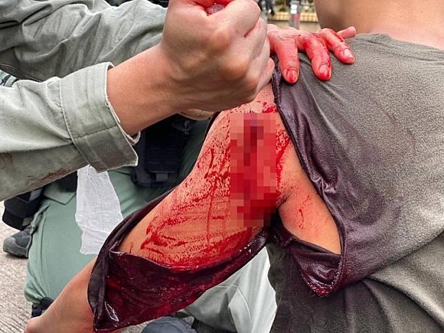 警員被多名暴徒不斷以利器及雨傘插傷,血流如注。