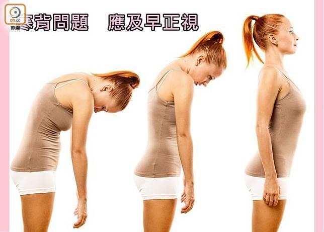 非結構性寒背是由於長期不良姿勢引起,而俗稱駝背的(舒曼氏症 - Scheuermann's Disease),較常見於小孩發育階段。