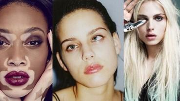 9位異於常人的模特兒 正在時尚圈發光發熱!