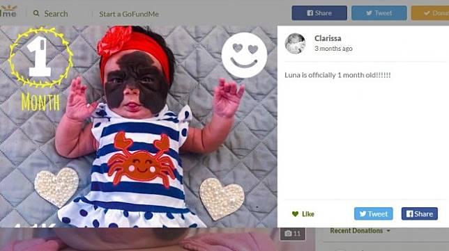 Luna mempunyai tanda lahir besar di wajahnya (GoFundMe/Clarissa Gudolle)