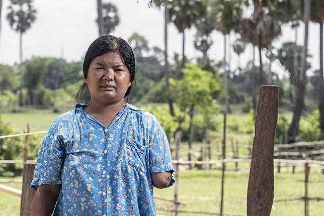 Horrific accident puts Cambodia's poor travel conditions for garment