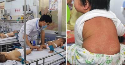 Trẻ sơ sinh vẫn mắc sởi dẫn đến viêm màng não, mẹ áp dụng cách chăm sóc này con sẽ bình an