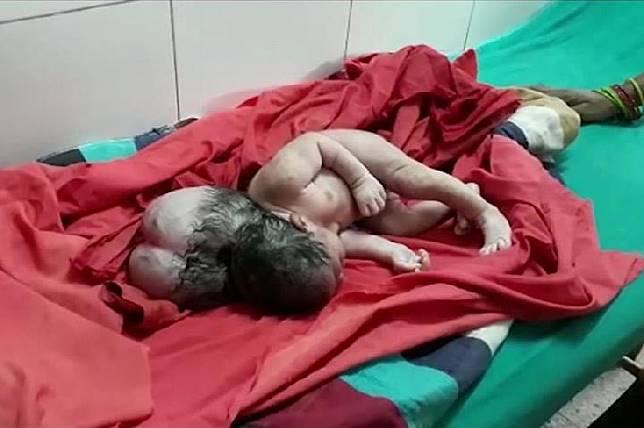 Bayi perempuan berkepala tiga. Sumber: mirror.co.uk