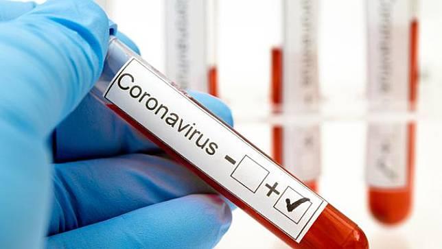 Gejala Virus Corona vs Flu Biasa, Begini Cara Membedakan