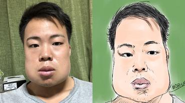 你也曾遭遇過嗎?日本男子一口氣拔 4 個智齒,臉頰慘變「戽斗」引眾人爆笑!