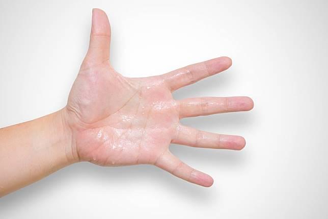 เหงื่อออกมือ เสี่ยงเป็นโรคอะไรได้บ้าง