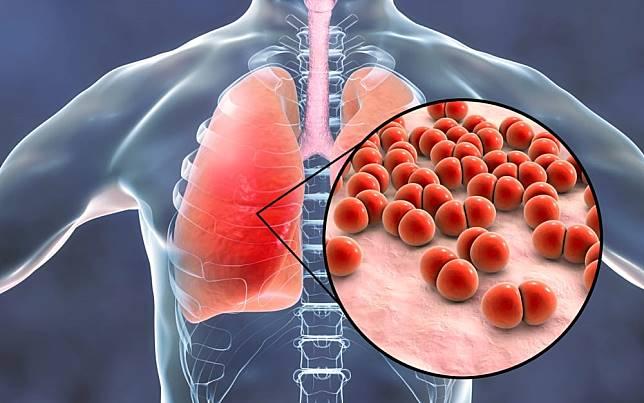 肺炎為肺部的急性感染!多休息喝水與服藥緩解