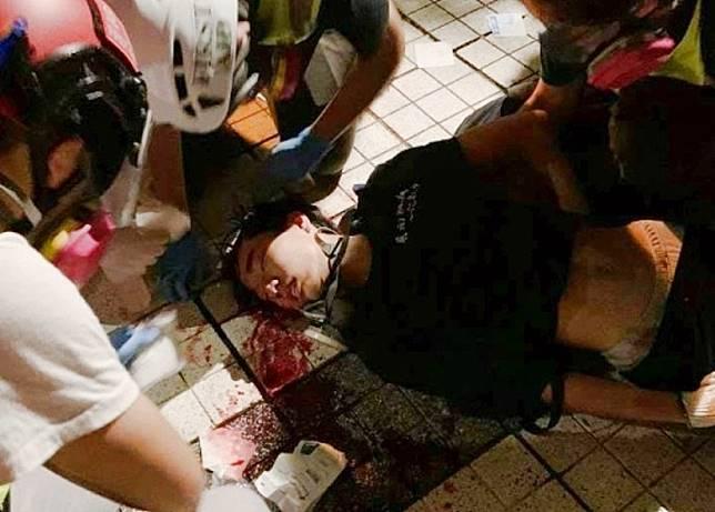 疑遭警方催淚彈擊中的少年失去知覺。(互聯網)