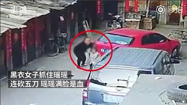 山西一名女童在自家門前玩耍時,突然遭一名黑衣女持刀狂砍臉部。(圖/翻攝自微博)