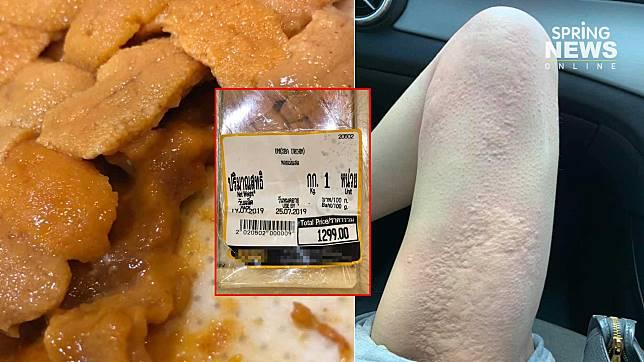 """สาวร้องห้างญี่ปุ่นชื่อดัง """"อูนิบูด"""" ท้องเสีย – ลมพิษ ถามหาความรับผิดชอบ"""