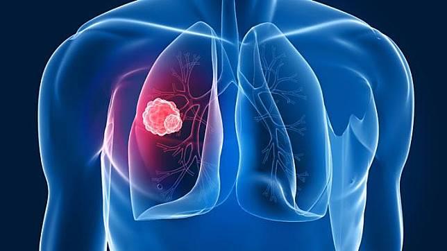 Awas Kanker Paru, Ini yang Perlu Dipahami