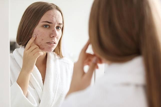 Ini Tips Mencegah & Meredakan Jerawat Selain Menggunakan Skincare