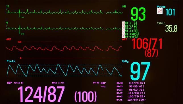 หัวใจเต้นผิดจังหวะชนิด Atrial Flutter (ภาวะหัวใจห้องบนเต้นเร็วผิดจังหวะ)