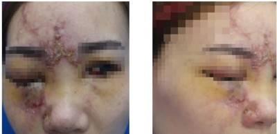 Nâng mũi bằng filler: 10 người đẹp hết vài người mù mắt vĩnh viễn